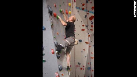 Jim Ewing is rock climbing again after an experimental surgery that could change the future of amputation.