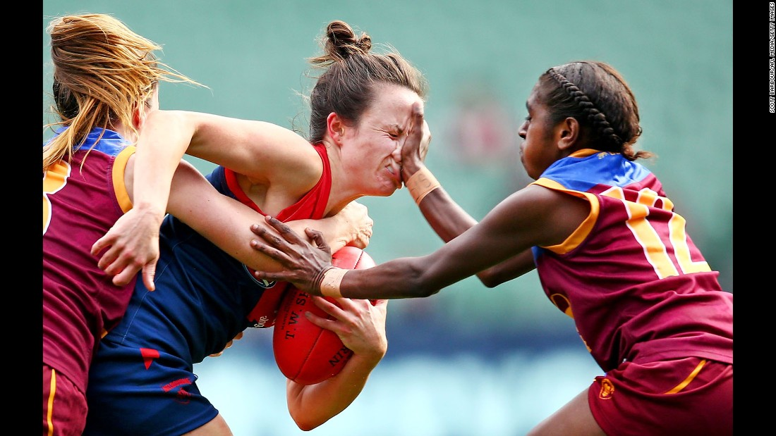 Melbourne's Daisy Pearce catches a hand to the face during an Australian Football League match on Sunday, May 22.
