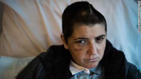 Suzanne Dakessian, a 39-year-old New York television producer, shows one of the more graphic of her injuries while at a rehab facility in West Orange, NJ on Sunday, November 27, 2016. Dakessian has a depression in her head where bone was removed from her skull and will hopefully be returned soon during her recovery; she is also blind in her right eye, injured in her left, and has a hand injury among other issues. Credit: Mark Kauzlarich for CNN
