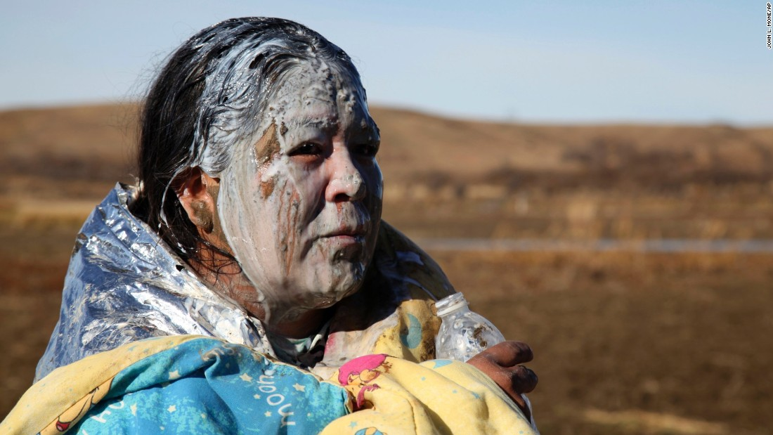 Tonya Stands recovers after being pepper-sprayed by police on Wednesday, November 2. Stands was pepper-sprayed after swimming across a creek with other protesters hoping to build a new camp to block construction of the Dakota Access Pipeline.
