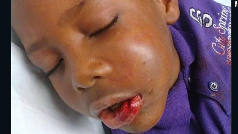 Trayvon Grayson, de 7 años, después del incidente.