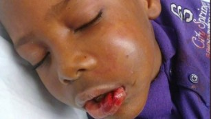 Trayvon Grayson, 7, after the incident.