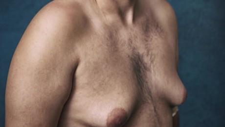 Risperdal Male Gynecomastia Johnson Johnson lawsuit nccorig_00000000.jpg