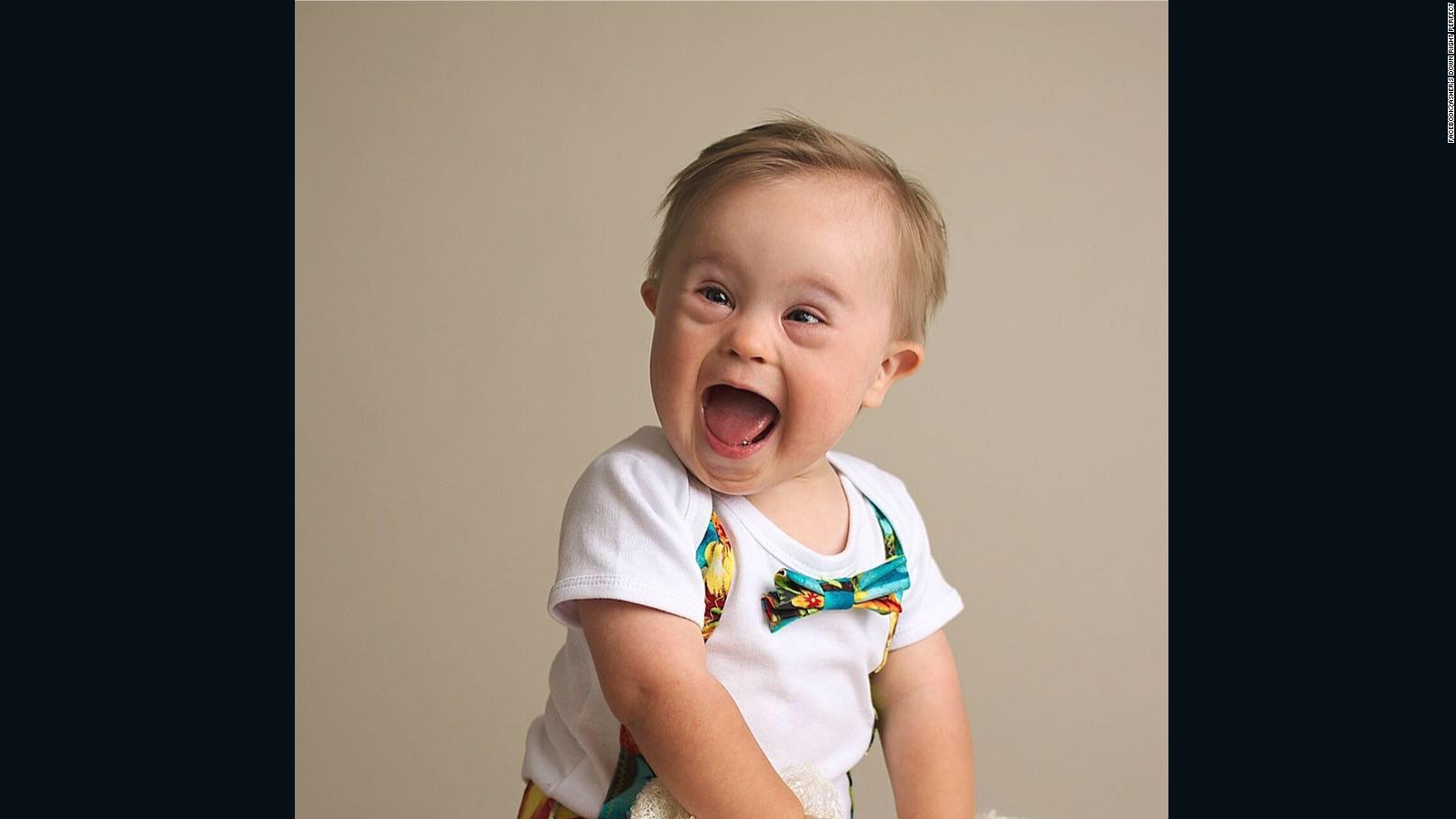 toddler down syndrome models for oshkosh