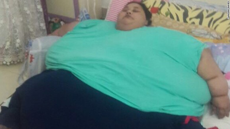 World's heaviest woman fights for life