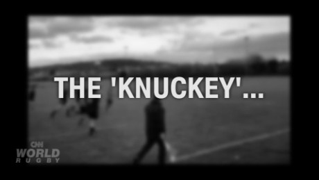 Can you do the 'Knuckey'?