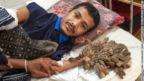 The branch-like warts grew out of his fingers, palms and feet