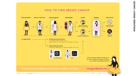 Detecting and diagnosing breast cancer may involve a number of steps.