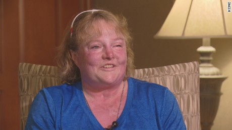 A  woman who was burned on nearly 90 percent of her body is giving back