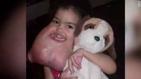 surgeons remove rare facial tumor brazil jnd vstop orig_00000701.jpg
