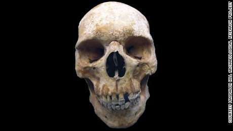 Sk27's skull shows no obvious signs of leprosy, although he probably experienced facial paralysis in life.