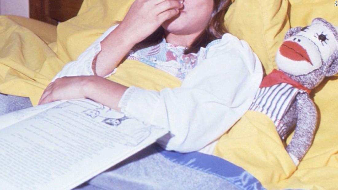 CDC: Mumps case... Mumps Cdc