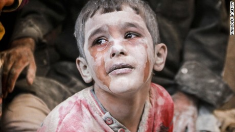 A wounded Syrian boy cries after Russian airstrikes on an Aleppo neighborhood in October 2016.