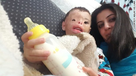Injured toddler's future waits on Trump travel policy