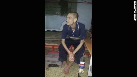 Syrian prisoner Omar Al-Shogre