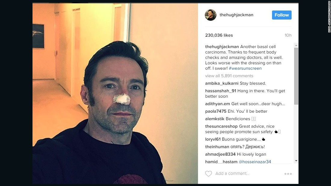 Hugh Jackman is undergoing treatment for basal cell carcinoma, again, according to a social media post. The Australian actor has been treated for basal cell carcinoma at least four times.