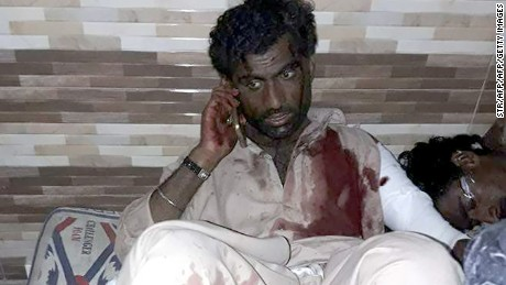 An injured Pakistani blast victim talks on mobile phone at a local hospital after a bomb explosion in the shrine of 13th century Muslim Sufi saint Lal Shahbaz Qalandar in the town of Sehwan in Sindh province, some 200 kilometres northeast of the provincial capital Karachi on February 16, 2017.