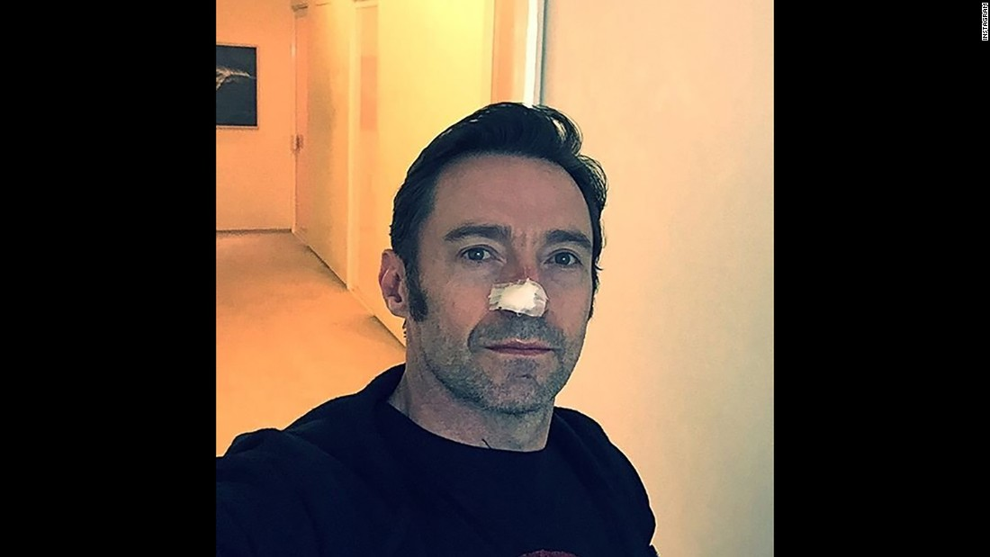 "Actor Hugh Jackman posted a selfie with his nose bandaged on Tuesday, February 14, after receiving treatment for a type of skin cancer. ""Another basal cell carcinoma,"" <a href=""https://www.instagram.com/p/BQdzEVGjQVt/?hl=en"" target=""_blank"">Jackman said on Instagram.</a> ""Thanks to frequent body checks and amazing doctors, all is well. Looks worse with the dressing on than off. I swear!"" He sought to warn fans about the danger of sun exposure and included the hashtag ""#wearsunscreen"" in his post."