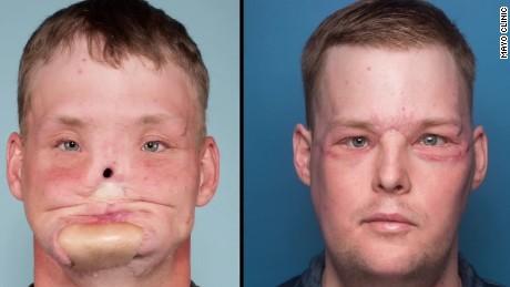 face transplant pkg gorani_00014619.jpg