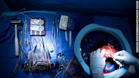 Dr. Niraj Desai flushes a kidney after it was removed from a donor during a kidney transplant at Johns Hopkins Hospital June 26, 2012 in Baltimore, Maryland.  The US Supreme Court is expected to announce their decision on the US President Barack Obama's healthcare law on June 28. The ruling could affect millions of its residents and determine whether the state receives billions in new federal revenue. The full impact, of course, depends on how the justices rule, since they could throw out the law entirely, declare it all constitutional, or reject portions of it, such as mandated insurance for most Americans.     AFP PHOTO/Brendan SMIALOWSKI        (Photo credit should read BRENDAN SMIALOWSKI/AFP/GettyImages)