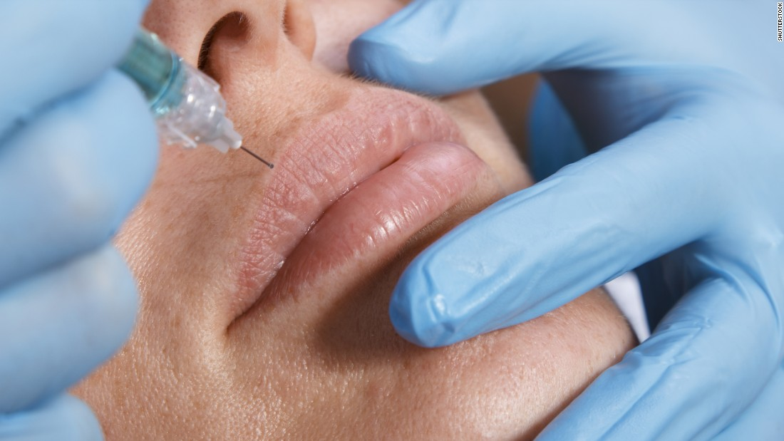 Soft-tissue fillers, injected in an effort to create a smoother or fuller appearance in the face or lips, were the second most-popular, with 2.6 million procedures.