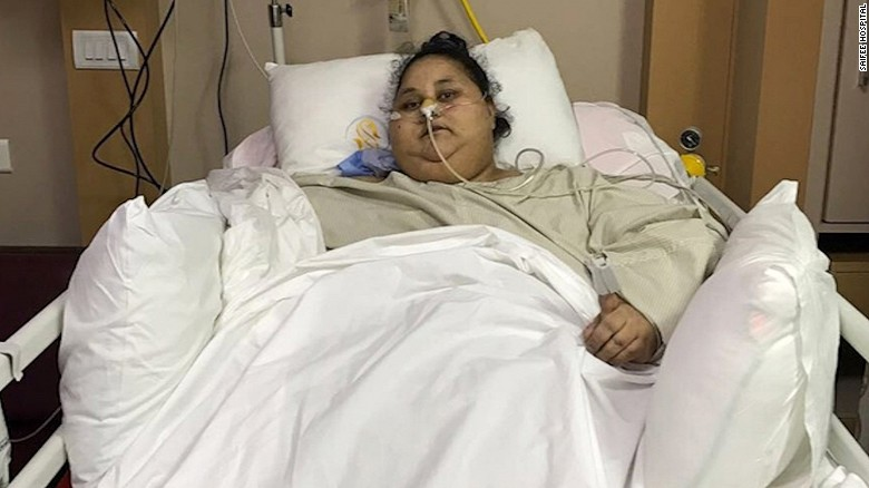 World's heaviest woman gets hope from surgery