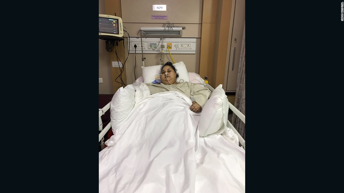 Smiling again' after weight reduction surgery 170310144620 eman hospital super tease