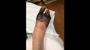 Due to septic shock, blood flowed away from Breen's hands and feet.