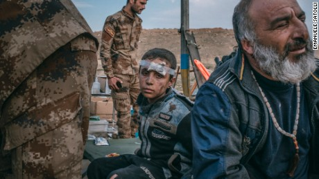 10 March 2017 - A boy injured by a mortar while was leaving his house with his family, seats in an field hospital, soutwest of Mosul.