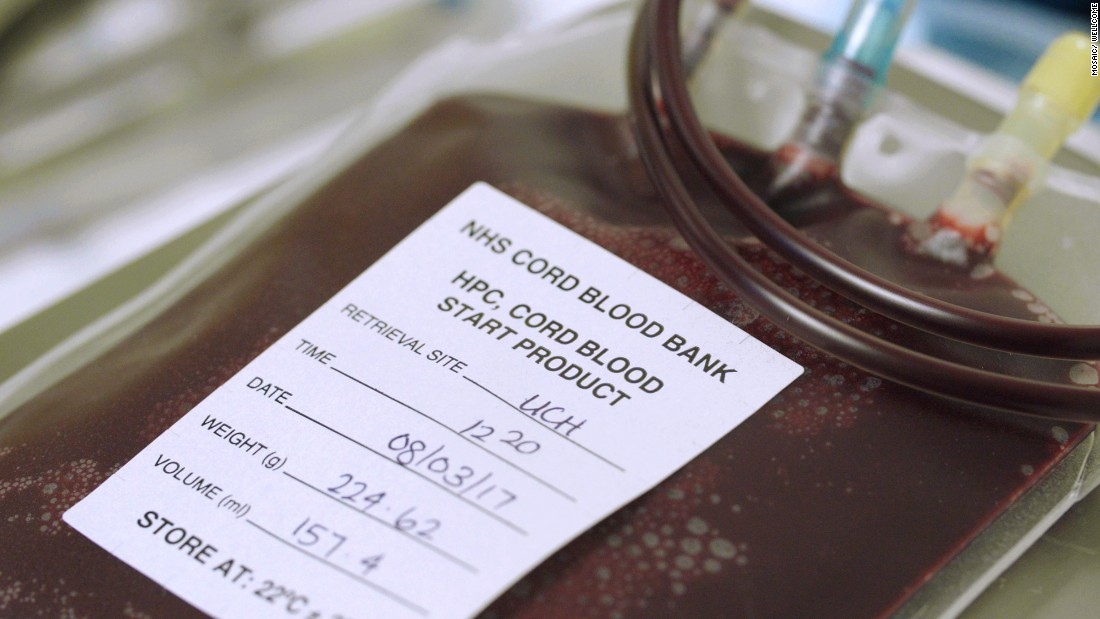 Blood extracted from cord blood is shown here at University College London Hospital (UCLH) in March 2017. It can be used to treat more than 80 conditions, including leukemia.