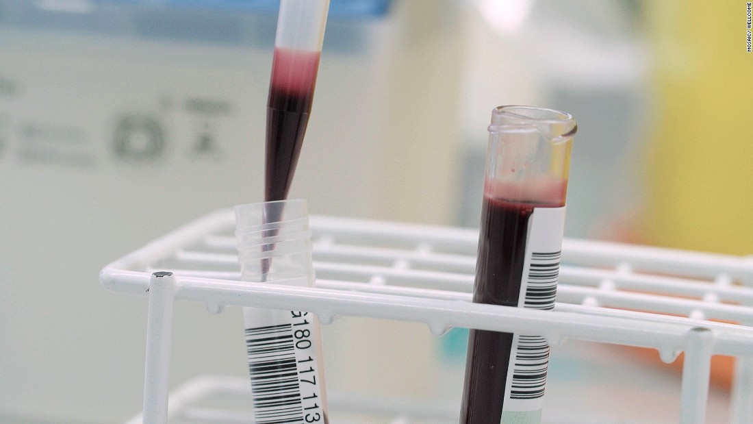 Blood from an umbilical cord and placenta is analyzed at UCLH in London.
