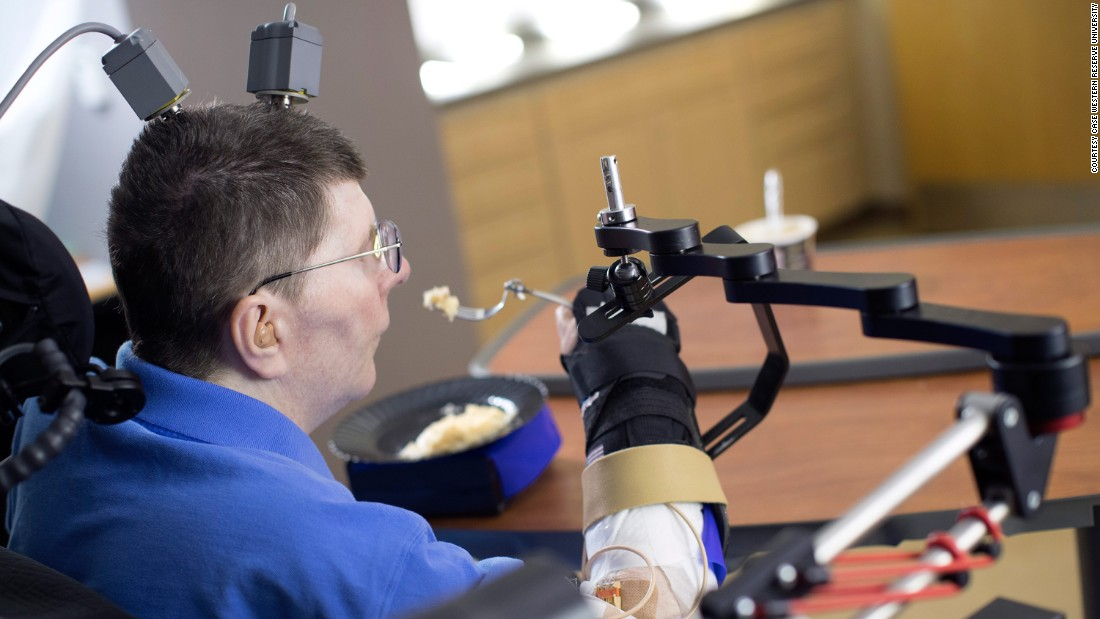 Paralyzed man uses arm thanks to experimental device