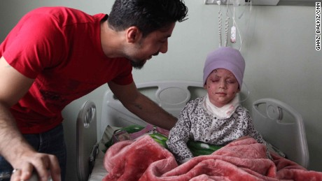 Hawra' plays with her doll while recovering in hospital. It is not yet known if she will recover her sight. She keeps asking for her mother who died in the airstrikes on March 17.