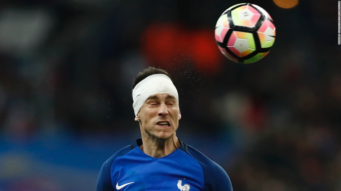 A bandaged Laurent Koscielny heads the ball for France during a friendly match against Spain on Tuesday, March 28.