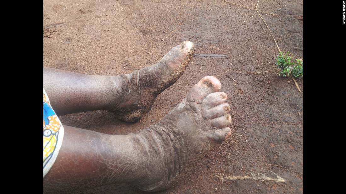 A recent epidemic of elephantiasis was reported in the Kamwenge District of western Uganda. Pictured, asymmetrical lymphedema (lower limb swelling) typical of the disease. An investigation by the country's Ministry of Health highlighted the root cause to be volcanic soil.