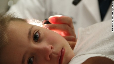 A new study by researchers at Nationwide Children's Hospital found that more than 260,000 children were treated in U.S. emergency departments over a 21-year period for ear injuries related to cotton tip applicators.