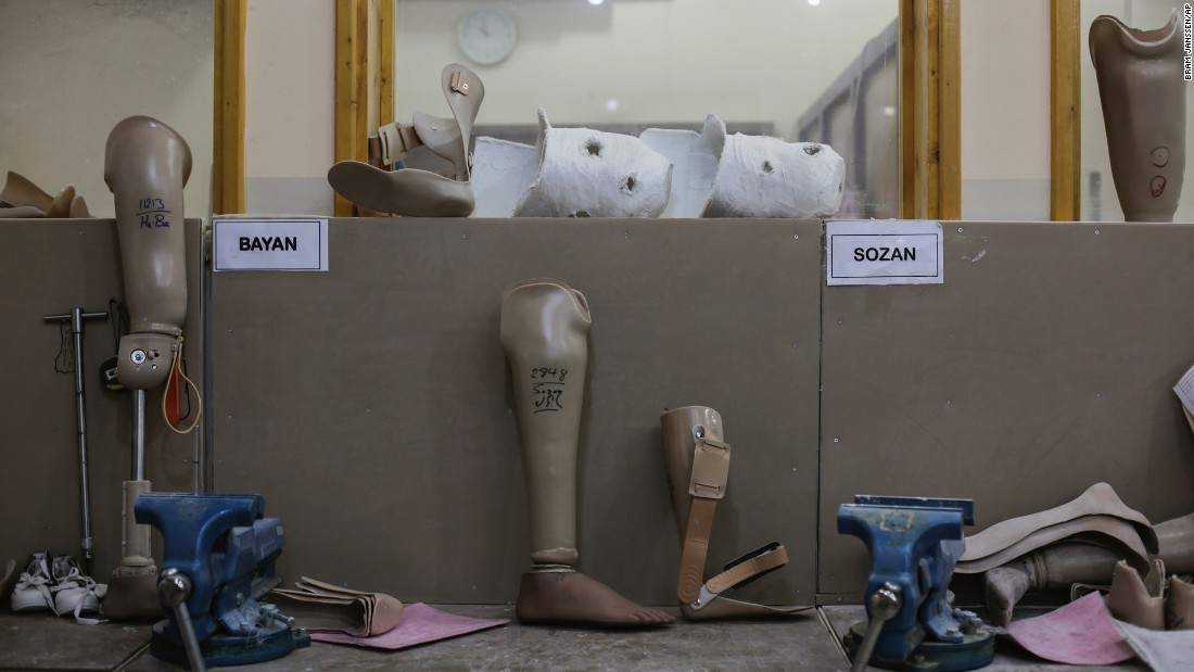 Prosthetic legs are seen at a Red Cross clinic in Irbil, Iraq, on Wednesday, May 10. The clinic receives more than 450 new patients a month.