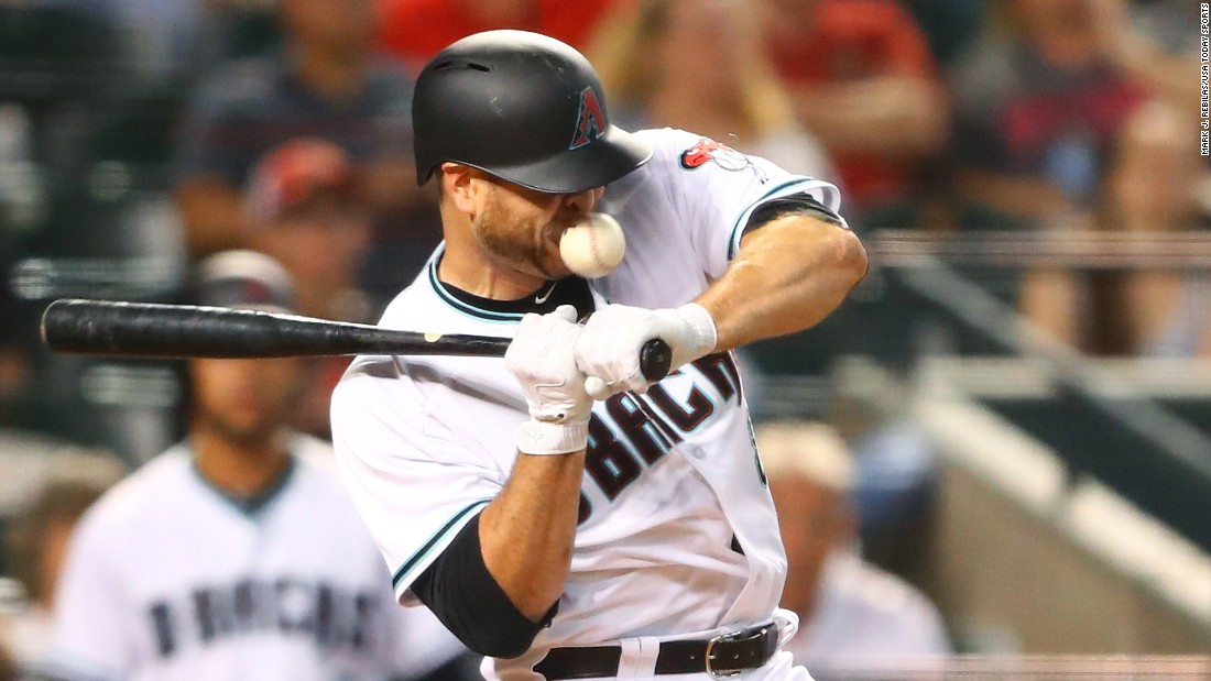 "Chris Iannetta, a catcher for the Arizona Diamondbacks, <a href=""http://m.mlb.com/news/article/230207774/chris-iannetta-put-on-concussion-disabled-list/"" target=""_blank"">is hit in the face by an errant pitch</a> during a Major League Baseball game in Phoenix on Friday, May 12. A few of his teeth were fractured, and his upper lip required stitches."