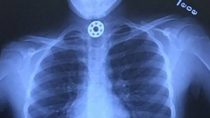 One of the bearings stuck in Britton Janiec's throat.