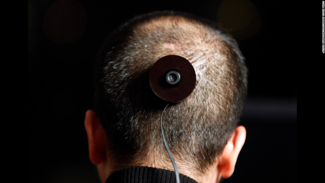 "On Dec. 5, 2010, photography professor and artist Wafaa Bilal has a camera implanted in the back of his head for conceptual project ""The 3rd I."" The idea was that an image would be taken every minute for a year, and streamed live on the internet and a Qatar galler. Alas, a few months in, Bilal was forced to remove the titanium plate attached to his skull when his body rejected it, leaving the artist in constant pain."