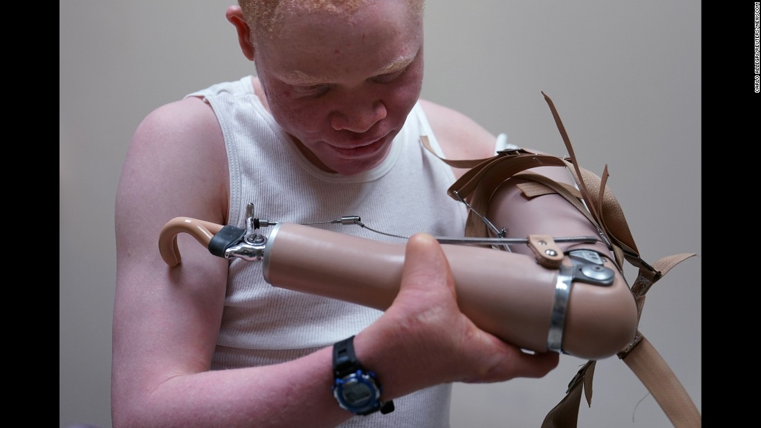 "Emmanuel Rutema, a 13-year-old Tanzanian who had his arm chopped off in an attack, puts on a new prosthetic arm at the Shriners Hospital in Philadelphia on Tuesday, May 30. In Tanzania, some albinos have been targeted for their body parts, <a href=""http://www.reuters.com/article/us-usa-tanzania-albinism-idUSKCN0RU2V320150930"" target=""_blank"">according to a Reuters report.</a>"