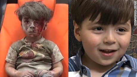 The image of Omran Daqneesh taken last August (left), and how he appeared in Syrian TV interviews.