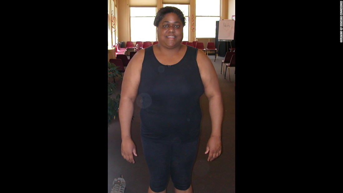 As an adult, Hutchinson gained a significant amount of weight, reaching up to 260 pounds and impacting her health.