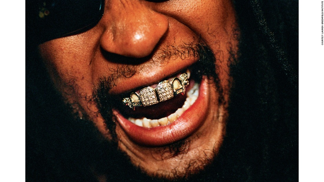 Lil Jon wears a diamond-and-platinum grill that reportedly cost $50,000 at the 2004 Soul Train Awards.