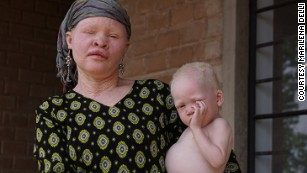 Songs from Tanzania's island of albinos