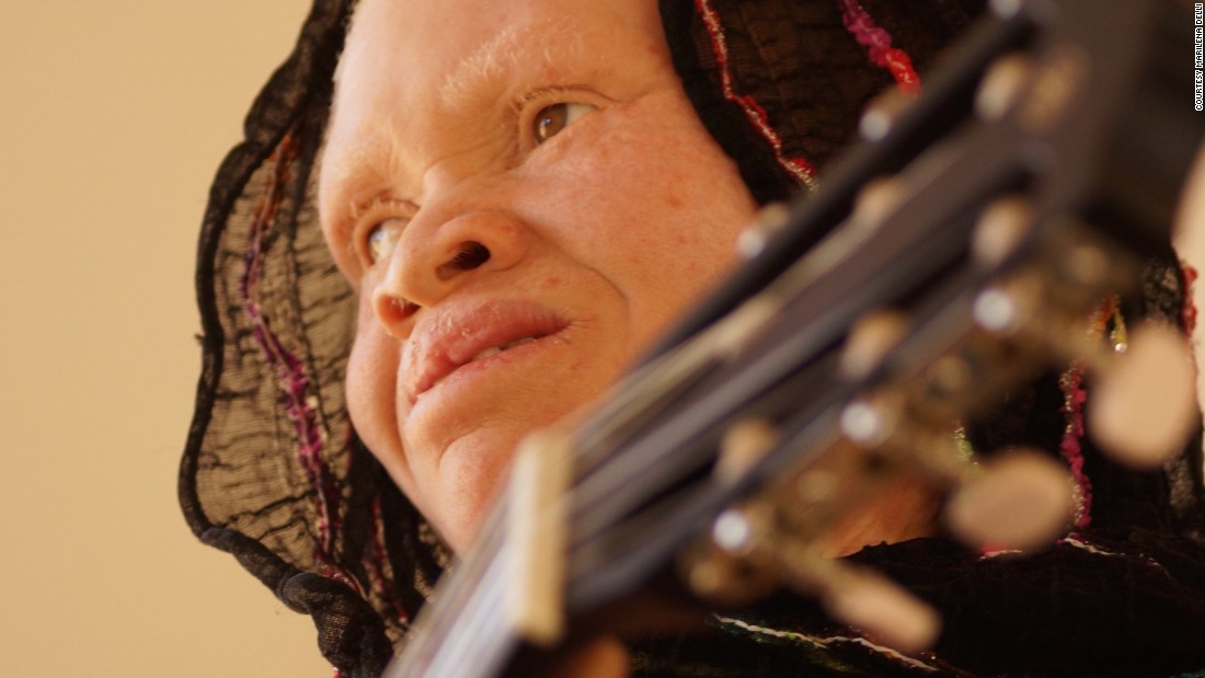 "The result of those sessions, ""White African Power"" by the ""Tanzania Albinism Collective,"" has been released prior to the United Nation's third International Albinism Awareness Day. Among the artists featured is Thereza Phinias (pictured), who contributed three songs including the upbeat album closer ""Happiness."""