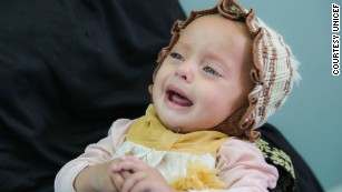 Yemen cholera outbreak grows, with children bearing brunt