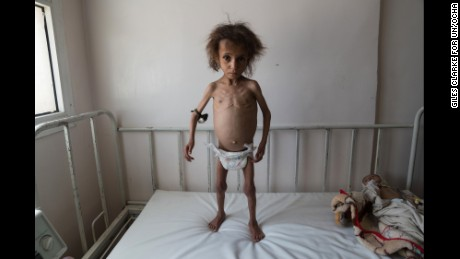 Batool Ali is severely malnourished. Aid agencies are predicting a full-blown famine in Yemen.