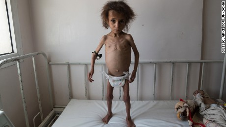 AL JOUMHOURI HOSPITAL, SAADA CITY, YEMEN -  24 APRIL 2017. 