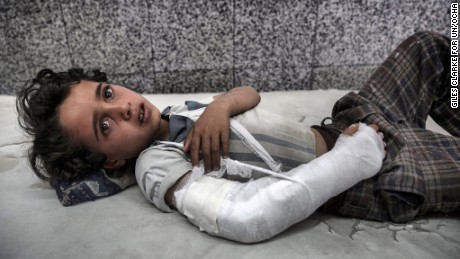A young boy lies in the emergency room awaiting treatment of Al Joumhouri Hospital in the Yemeni capital, Sana'a.